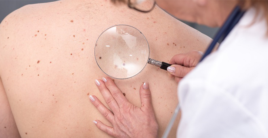 la dermatologia centro medico biolife